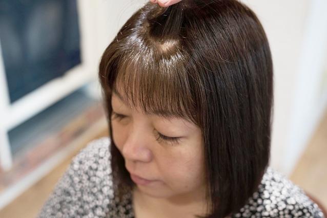 お顔周り、前髪の生えグセ|AFTER 施術後