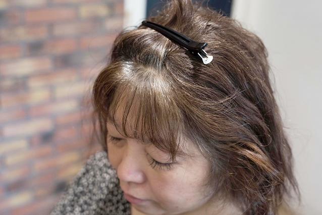 お顔周り、前髪の生えグセ|BEFORE 施術前