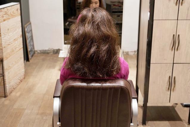 毛髪が著しく多い|BEFORE 施術前
