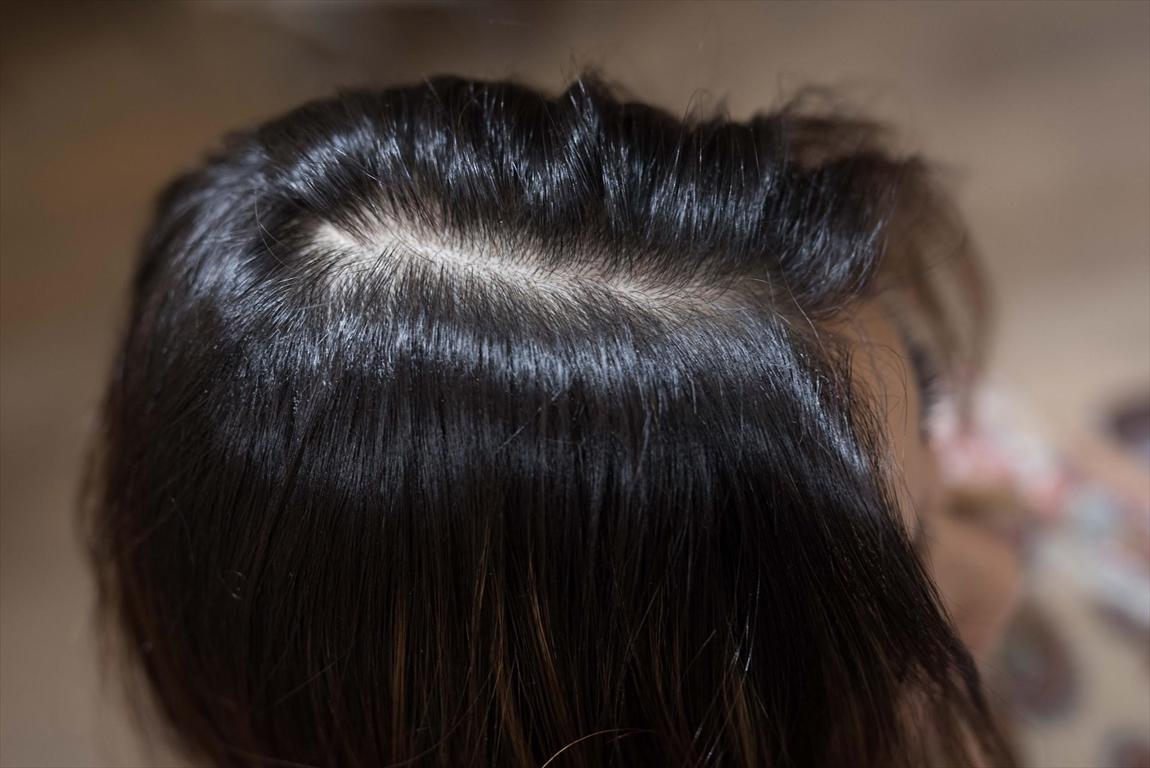 ヘアカラーによるヘアダメージ&頭皮ダメージ問題