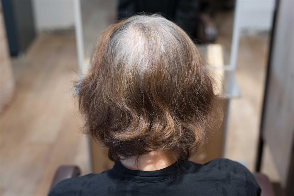 ヘアカラーによる毛髪&頭皮の老化促進問題(薄毛、細毛、白髪の原因)