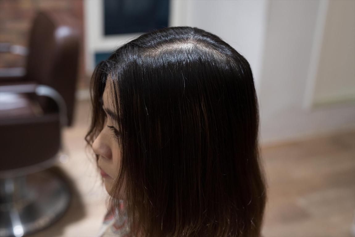 BEFORE 施術前|毛髪にボリューム感が出ない方