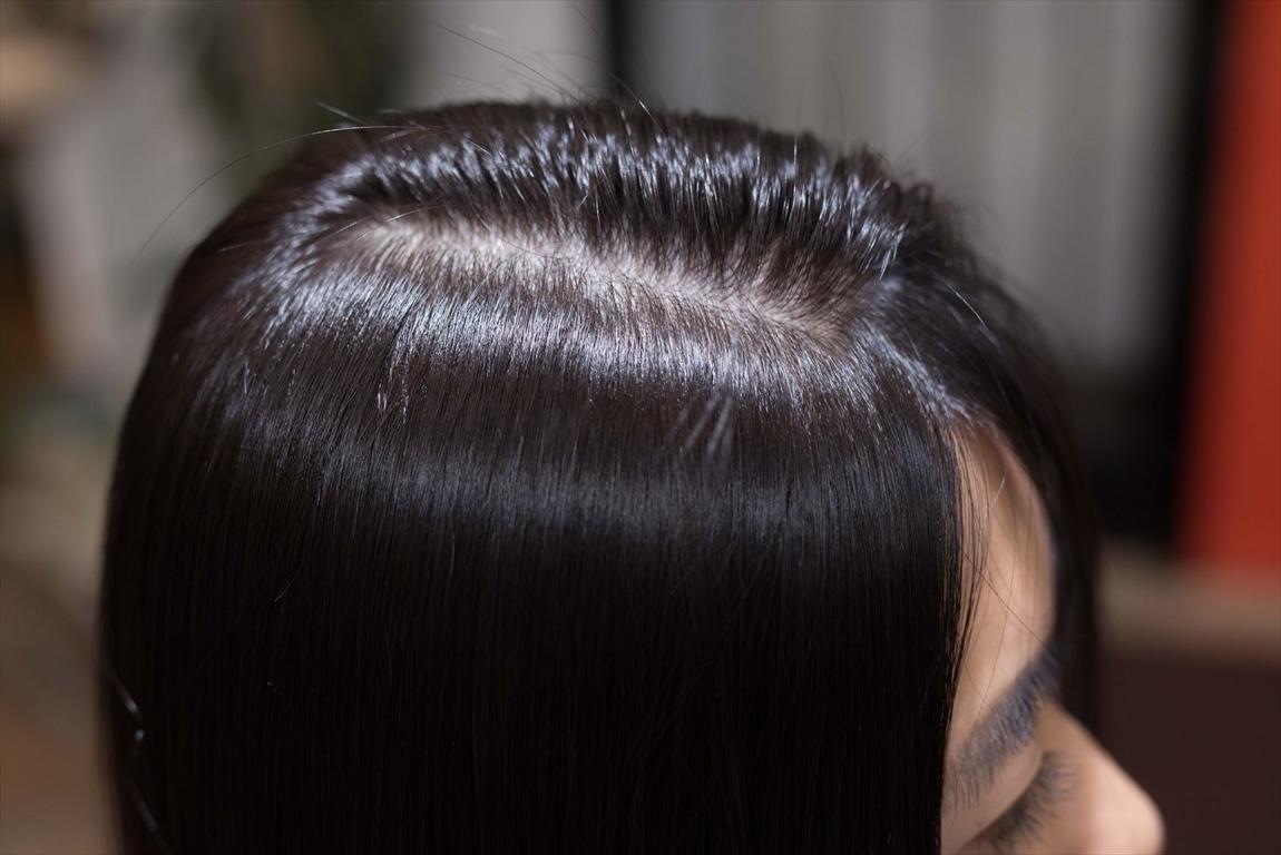 AFTER 施術後|毛髪にボリューム感が出ない方
