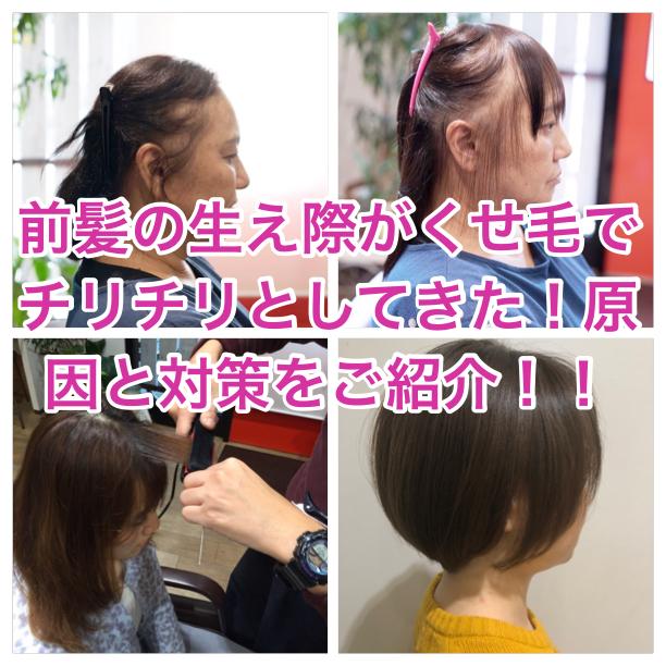 前髪の生え際がくせ毛でチリチリとしてきた!原因と対策をご紹介!!